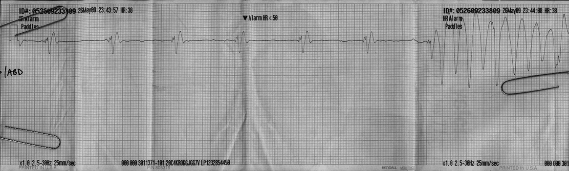 Consider, that agonal ekg strip can not